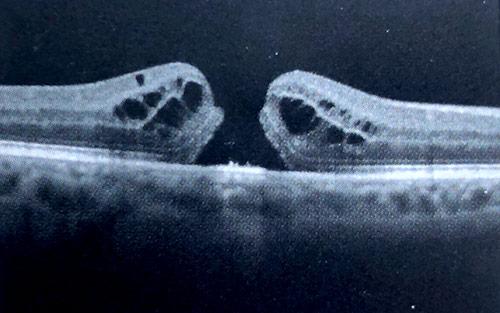 Oct Scan Macular Holes